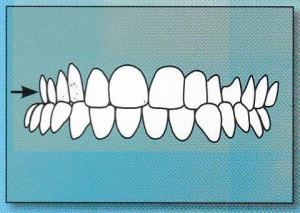 CROSSBITE:  Upper back teeth fit inside lower back teeth