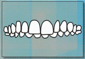 DEEP BITE:  Upper front teeth                 overlap lower front teeth too much