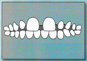EXCESS SPACING:  There is too much space between the teeth