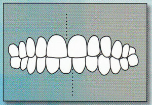 MID-LINES NOT ALIGNED:  Mid-lines of upper and lower teeth do not line up