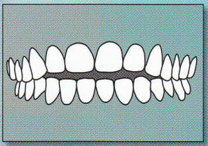 OPEN BITE:  Back teeth are together, but there is too much space between the front upper and lower teeth protrude