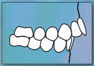 OVERJET: Upper front teeth protrude