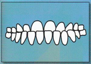 UNDERBITE: Lower front teeth protrude
