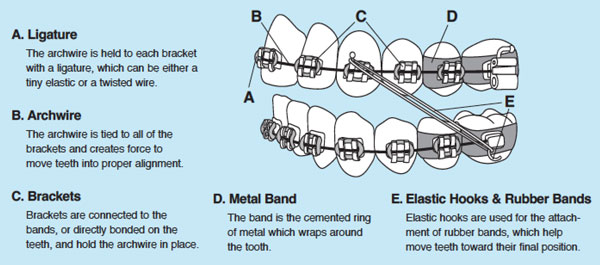 Courtesy of the American Association of Orthodontists