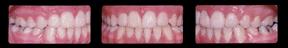 teeth2di