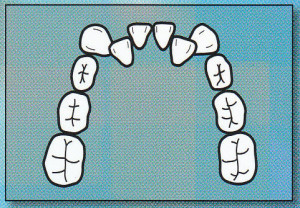 CROWDING:  Teeth are crowded, not enough space